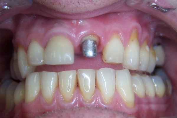Implant - Before
