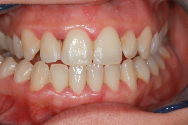 Discoloured anterior composites replaced after cosmetic teeth whitenning and peridontal treatment.