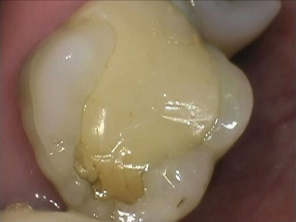 Discoloured and leaking Pre-molar and molar composites replaced with micro-filled direct composites. Tight inter-proximal contacts achieved using a sectional matrix band system.