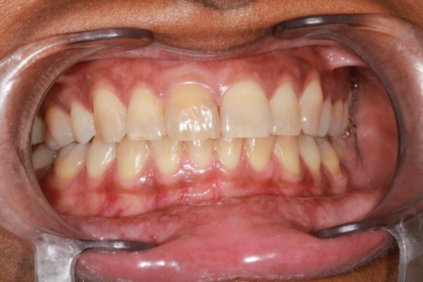 Discoloured root filled UR1 whitened with internal and external bleaching.