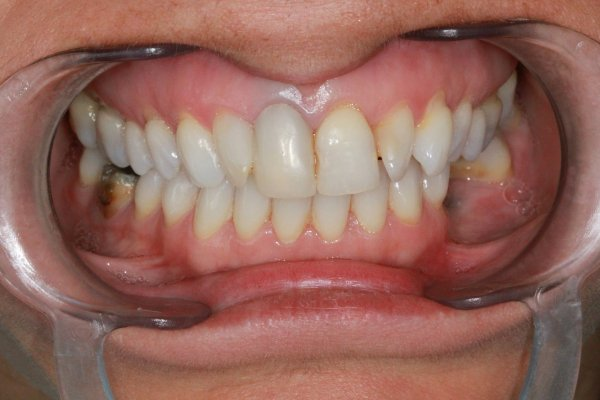 UR1 crown replaced with an all ceramic zirconia crown and root filled with a metal post/core.