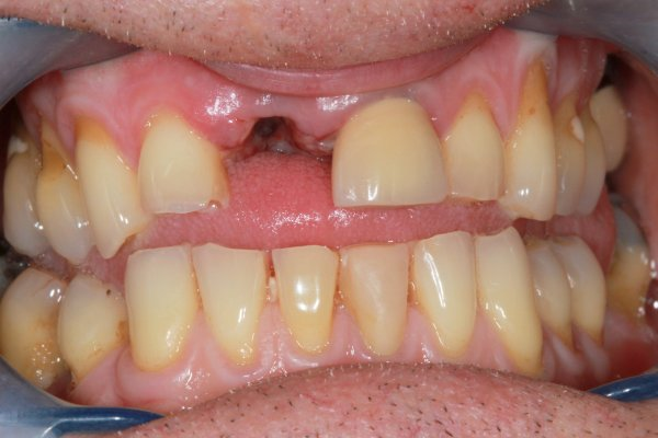Missing UR1 restored with a screw retained implant/crown, interim stabilisation carried out with a cantilever adhesive bridge.