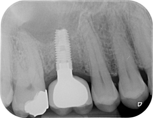 Missing UR6 restored with a  screw retained implant/crown.