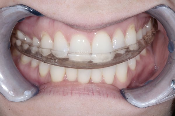 An upper Michigan hard acrylic occlusal splint providing protection from dental parafunctioning.